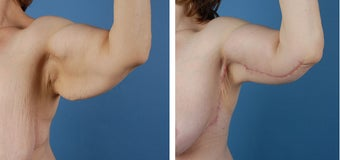 Arm lift (Brachioplasty) before 303698
