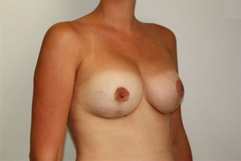 Breast Lift after 221110