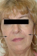 Restylane injections for laugh lines after 91296