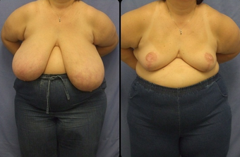 Breast Reduction  before 160540