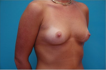 Breast Augmentation Silicone hi profile 375cc 64686