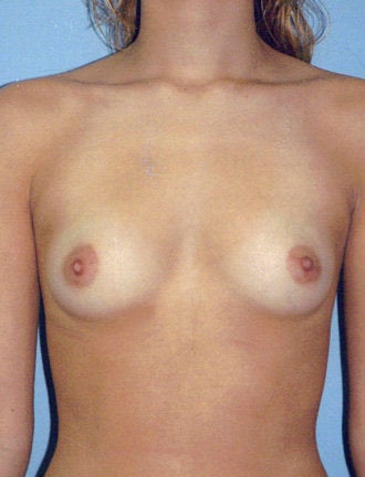 Breast Augmentation  before 631555