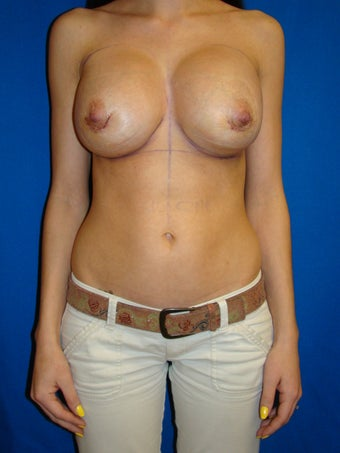 Breast Augmentation Revision after 82648
