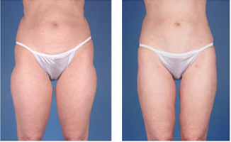 Liposuction with ultrasound of hips and thighs, age 55