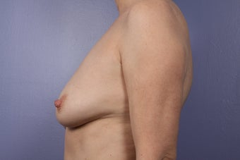 Breast Augmentation before 466419