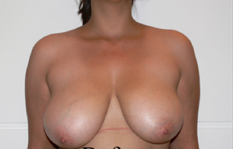 Breast Reduction before 427690