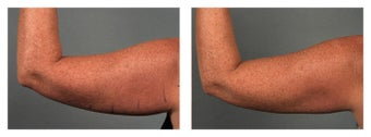 CoolSculpting Arms before 541957