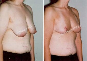 Mastopexy-Breast Lift before 243710