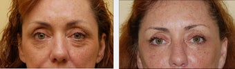 Blepharoplasty before 314261