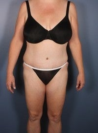 Tummy Tuck, Liposuction after 374144