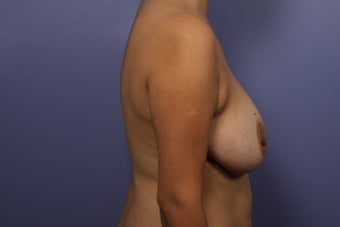 Breast Augmentation 467216