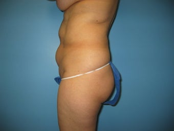 tummy tuck with liposuction 496508