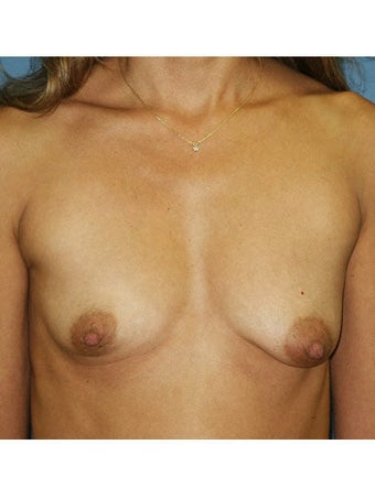 Bilateral perioareolar subpectoral breast augmentation with placement of 400cc high profile saline breast implants inflated to 4 before 249959