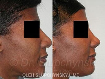 African American Rhinoplasty after 374017