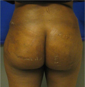Brazilian Buttock Lift after 302922