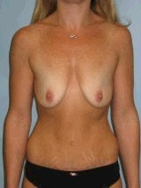Breast Augmentation before 417444