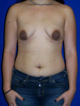 Breast Augmentation with a Benelli Lift before 124936