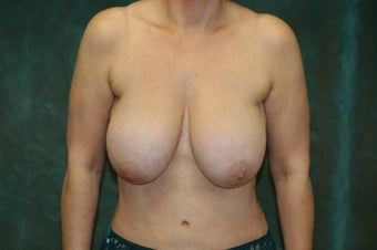 Women's Breast Augmentation: Redo  before 554000