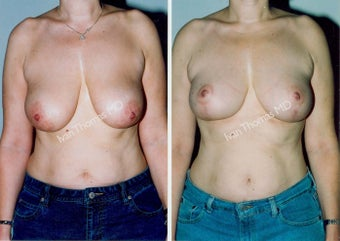 Mastopexy-Breast Lift before 243705