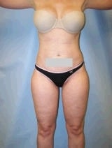 Liposuction Surgery after 139123