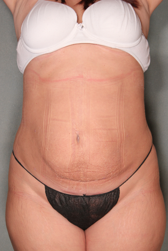 SmartLipo™  after 529476