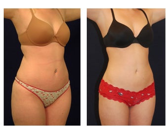 Liposuction before 286749