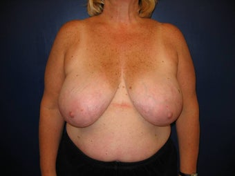 Breast Reduction before 119400