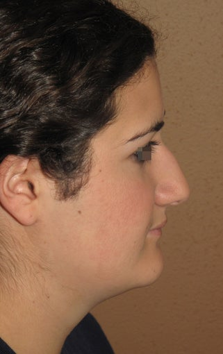 rhinoplasty before 270672