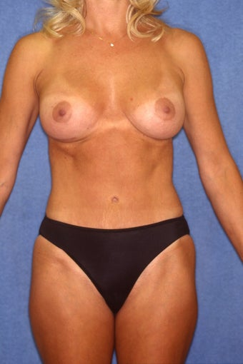 Tummy Tuck with Liposuction after 410395