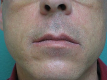 Radiesse for Nasolabial folds after 76438