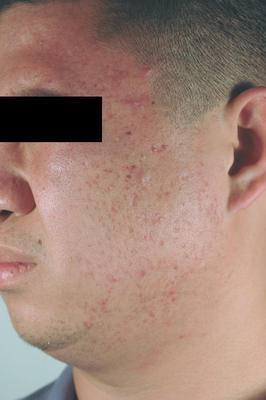 Laser Acne Scar Removal before 86374