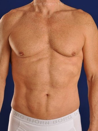 Vaser Hi Def Liposuction of chest, abdomen, back and flanks after 422687