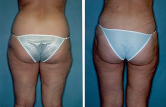 Liposuction before 314374