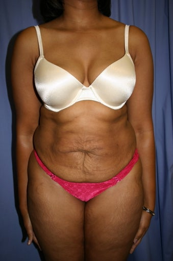 Tummy Tuck before 347086