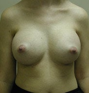 Breast Augmentation after 139554