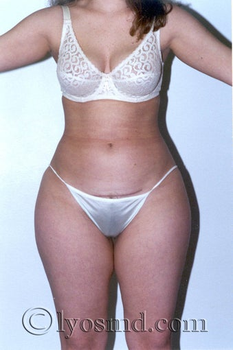 Liposuction before 225379