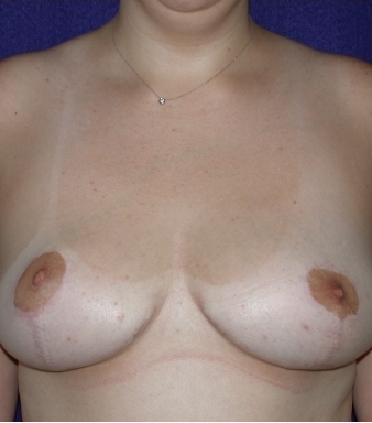 Breast Reduction after 213159