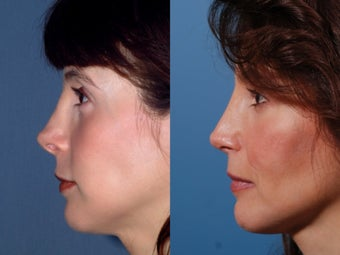 Revision rhinoplasty after 437931