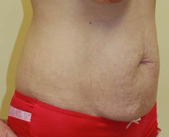 Abdominoplasty (Tummy Tuck) and Breast Augmentation before 216688