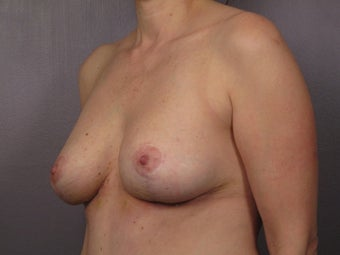 Breast Revision after 307217