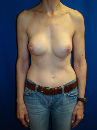 Breast Augmentation Revision before 75891