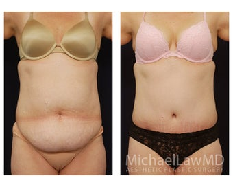 Abdominoplasty - Tummy Tuck before 396103