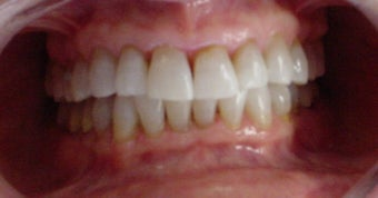 whitening tetracycline stained teeth after 359227