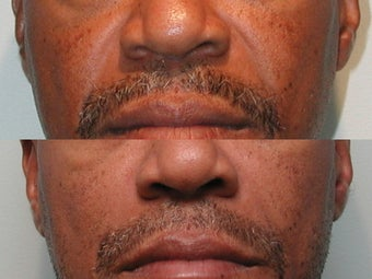 Nasal Labial Fold Correction with Silicone before 139176