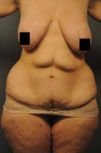 Abdominoplasty, abdominal and flank liposuction, beltlipectomy, bilateral mastopexy before 366885