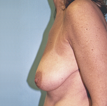 Vertical Breast Lift with Saline Implants before 270961