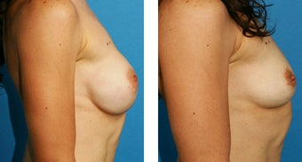 Breast Implant Removal with Internal Lift after 562127