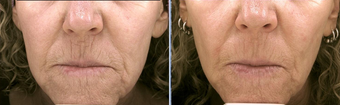 Pro-Fractional Laser before 333847