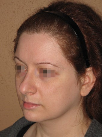 2 weeks after result of rhinoplasty/septoplasty before 270698