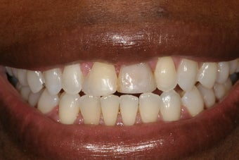 Cosmetic Dentistry before 298657